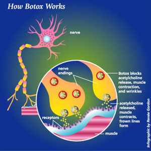 botox | how botox works | dr alek nikolic