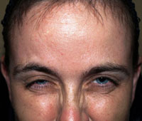 Botox Treatment: After | Glabella (Frown Area)