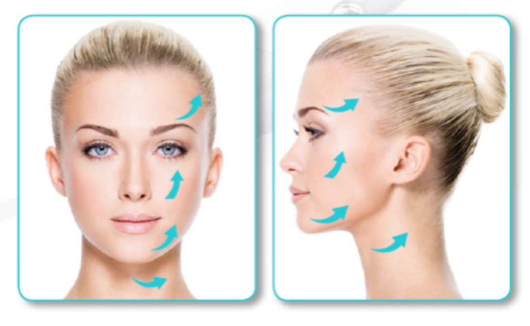 Silhouette Soft Double Action | Aesthetic Facial Enhancement | Dr Alek Nikolic